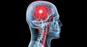 Les accidents vasculaires cérébraux (A.V.C.) sont la 2e cause de mortalité et la 1ère cause de handicap en France. Le 27 mai, découvrez comment réagir aux premiers signaux d'alerte et vivre avec un AVC.